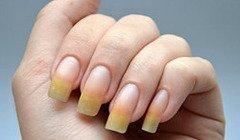 Как восстановить ногти после гель лака в домашних